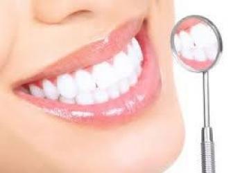 Detalhes do serviço Clareamento Dental
